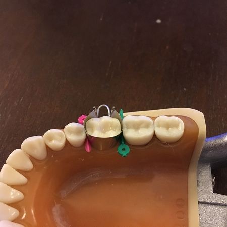 MOD U Dental Bands Kit